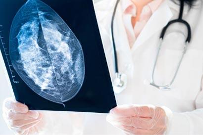 radiologia senologica
